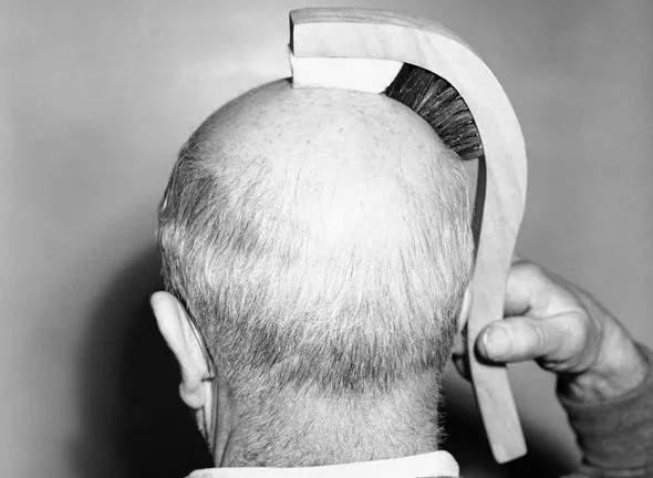 chiếc lược cho những người đầu hói